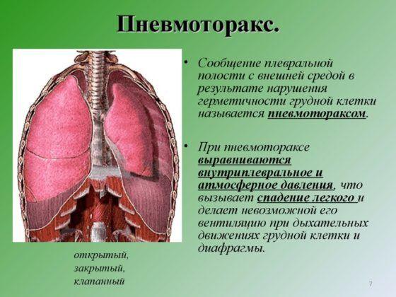Введение дренажной трубки может потребоваться при пневмотораксе