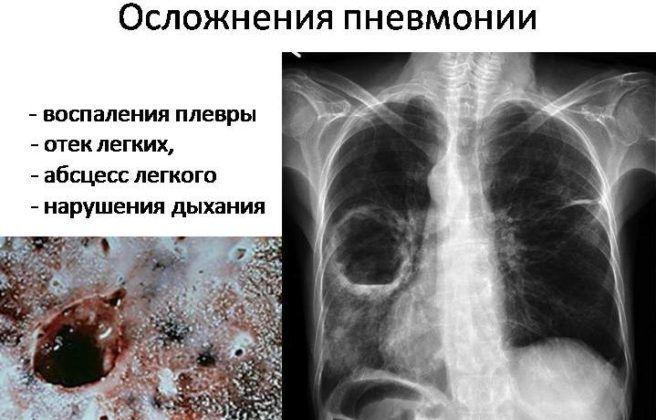 Осложнение пневмонии
