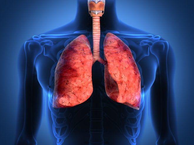 Постпневмонический фиброз