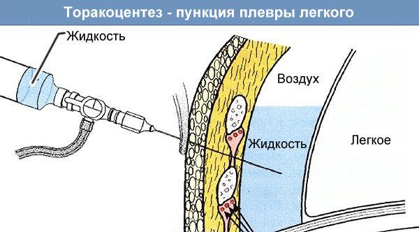 Трансторакальную пункцию легкого