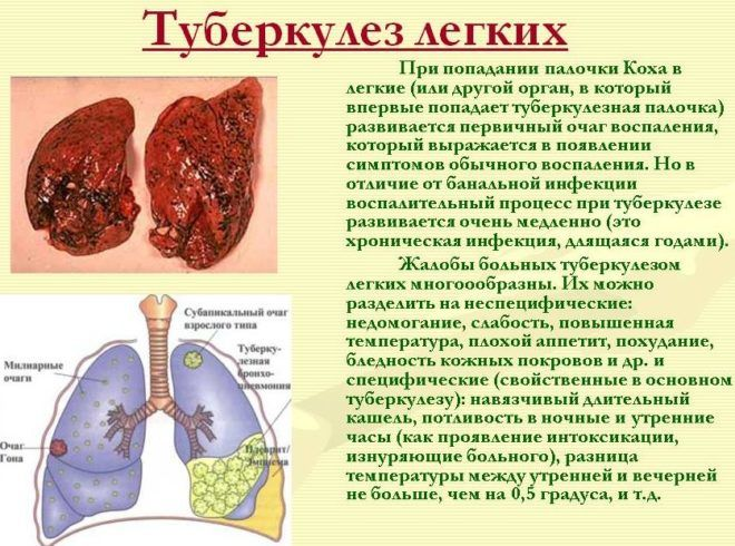 Развитие туберкулеза легких