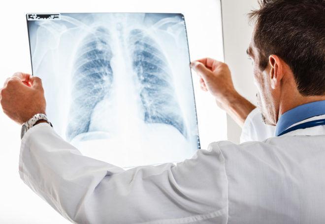 Значение и виды анализов при пневмонии