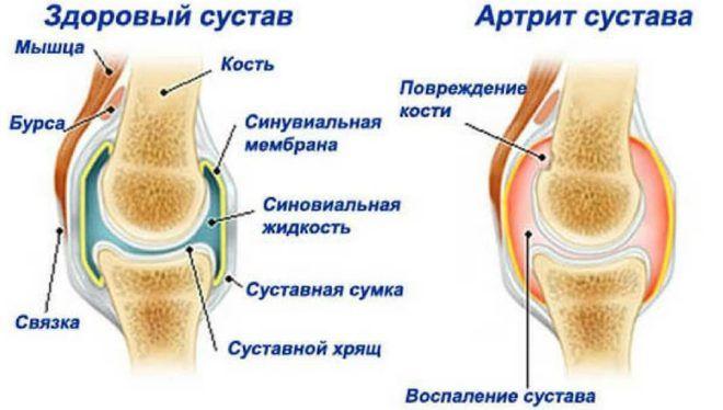 Артрит может вывать боль в легком