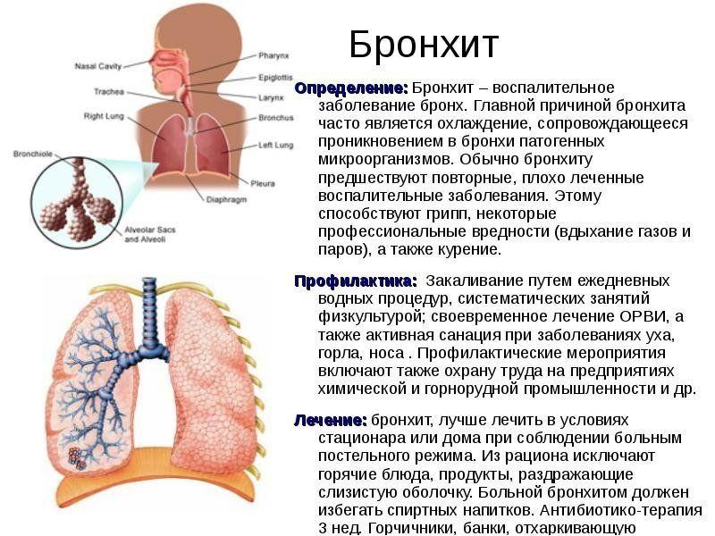 Бронхит симптомы и лечение в домашних условиях 607