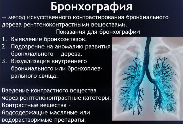 Бронхография