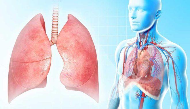 Что такое плеврит легких