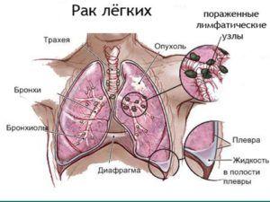 До 70% очагов в легких относятся к злокачественным новообразованиям