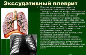 Экссудативная форма плеврита