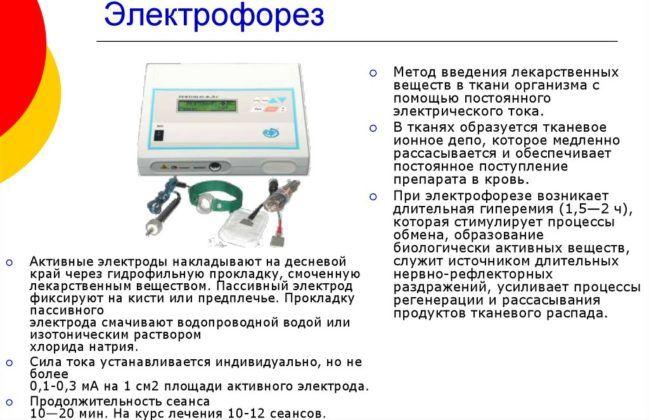 Электрофорез для лечения пневмонии