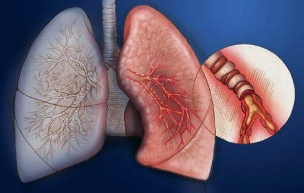 Эндобронхит диффузный
