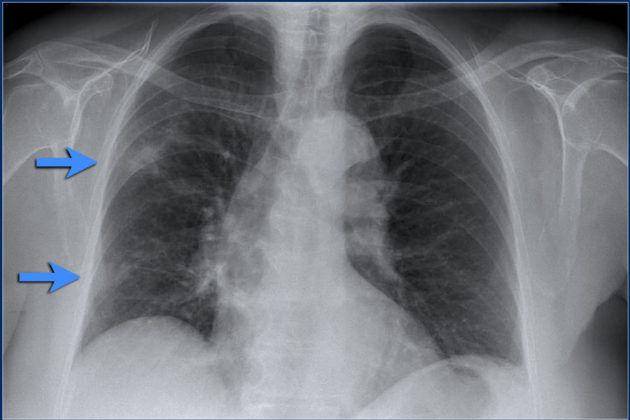 Эозинофильная пневмония имеет инфекционно-аллергическую природу