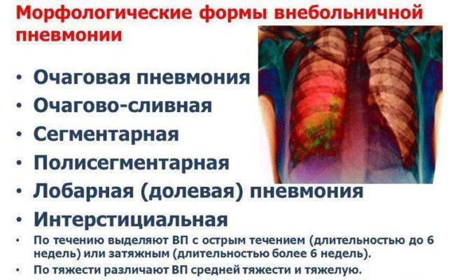 Формы пневмонии