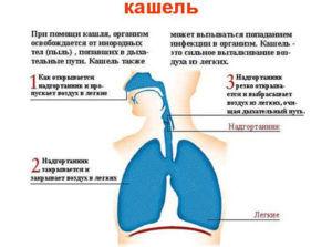 Главным симптомом аллергического бронхита является кашель