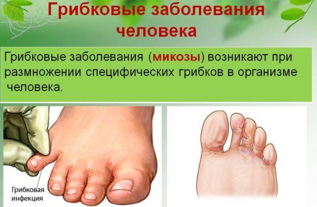 Грибковая инфекция