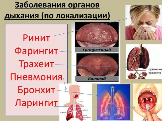 Инфекции органов дыхания