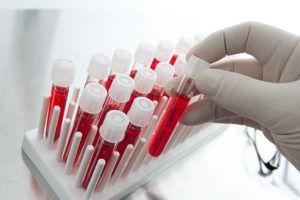 Лабораторные исследования крови для диагностики пневмонии при туберкулезе