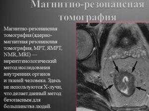МРТ для диагностики возникновения свиста при вдохе