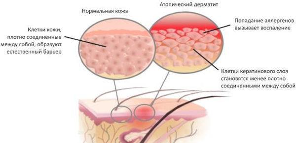 Мазь запрещена при дерматитах