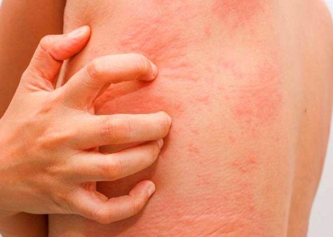 Непереносимость компонентов и аллергическая реакция