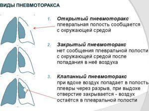Осложнением пневмонии является пневмоторакс