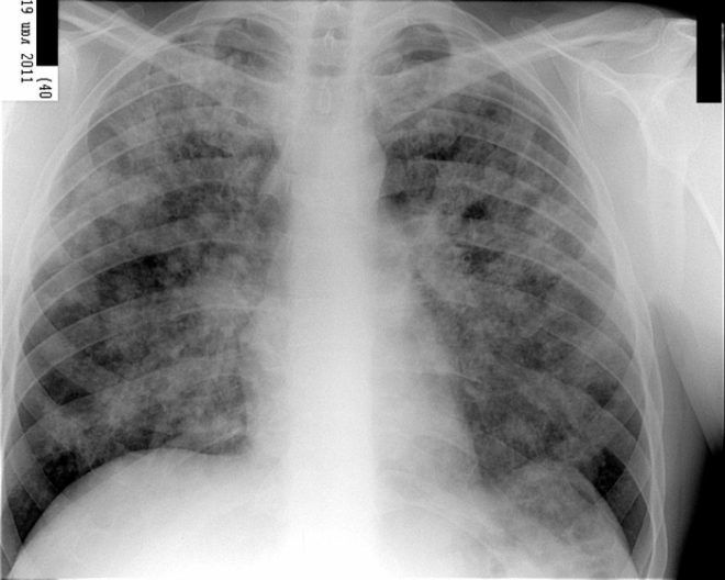 Отличие пневмонии от туберкулеза