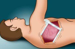 Переднебоковой способ хирургического вмешательства