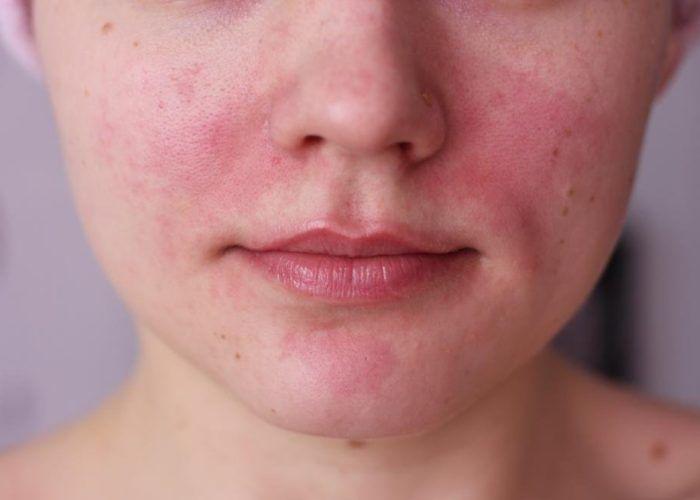 Покраснение и раздражение кожи лица