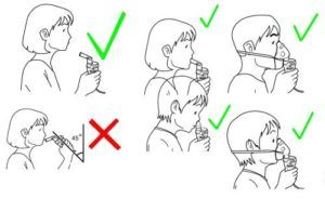 Правила применения ингаляций с интерфероном