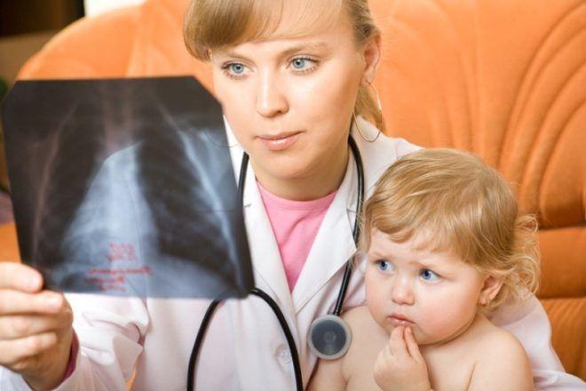 Правосторонняя пневмония у детей