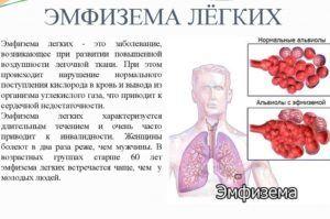 При эмфиземе лёгких назначают Сальбутамол