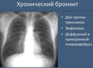 Признаки патологии на рентгеновском снимке
