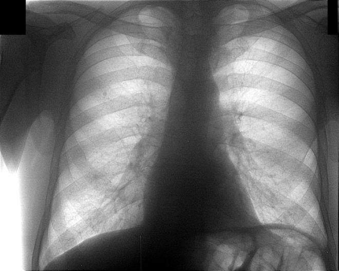 Признаки пневмонии на флюорографии