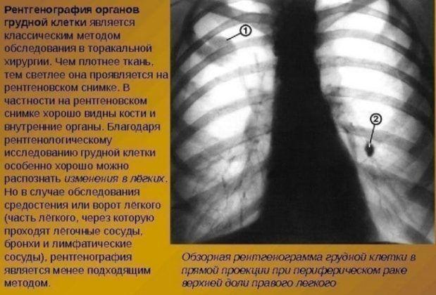Ренгенография