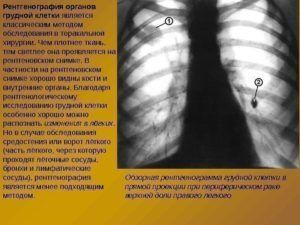Рентген грудной клетки перед пункцией