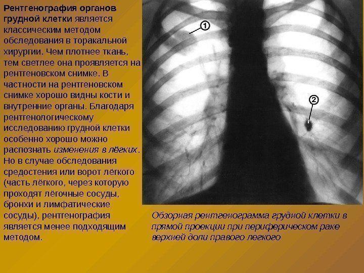 Рентген во время беременности на ранних и поздних сроках влияние последствия