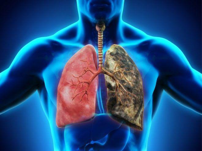 Симптомы и лечение пневмонии при туберкулезе