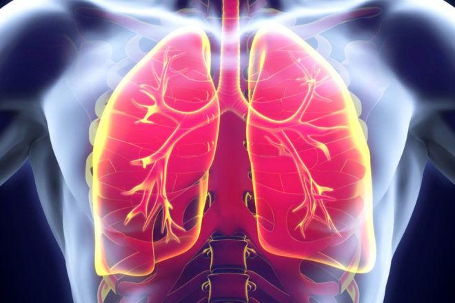 Симптомы и лечение склероза легких