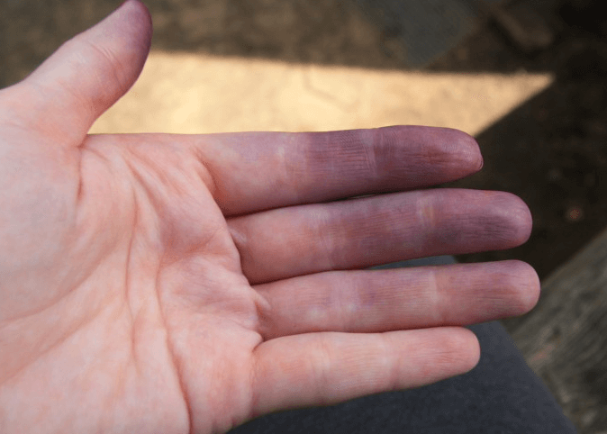 Синюшность кожных покровов