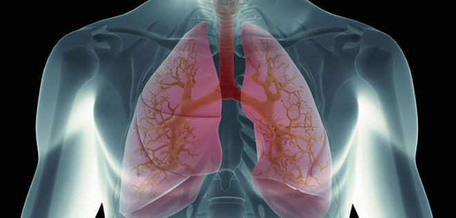 Скрытая пневмония у детей и взрослых