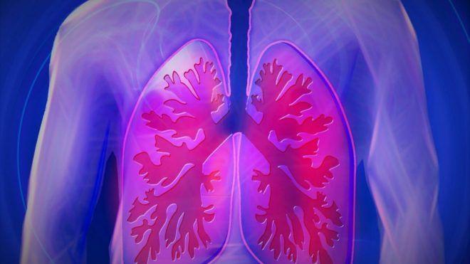 Смерть от пневмонии