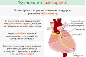 Тахикардия является побочным действие на препарат