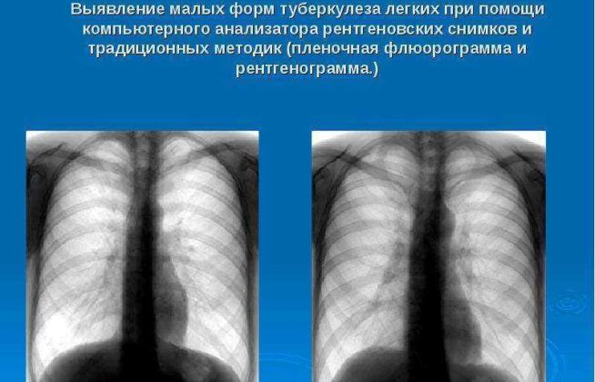 Туберкулез на снимке