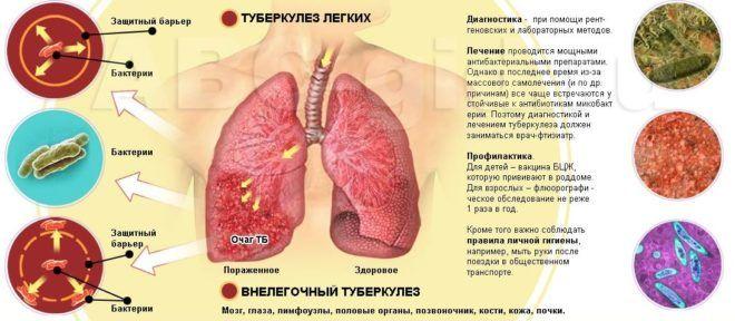 Туберкулез является осложнение пневмофиброза