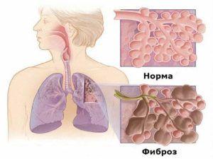 У людей с бронхиальной астмой развиться фиброз легких