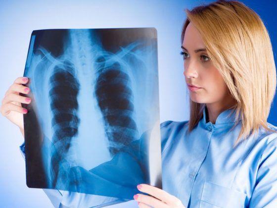 Важно своевременно диагностировать воспаление легких