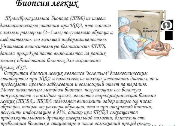 Биопсия легочной ткани для диагностики пневмонии