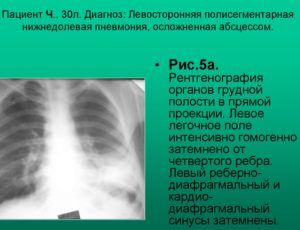 Пневмонию на снимке флюорограммы