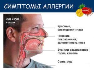 Аллергическое першение с кашлем