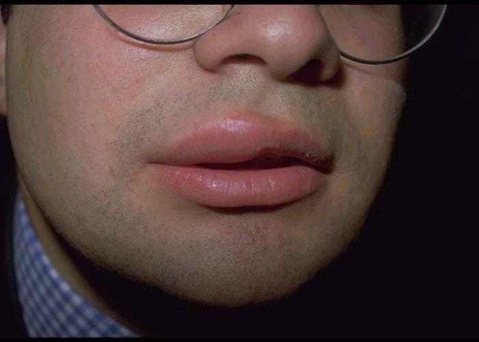 Ангионевротический отёк губ или лица