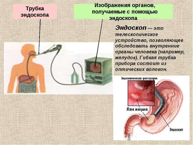 Бронхоскопия при помощи жесткого эндоскопа